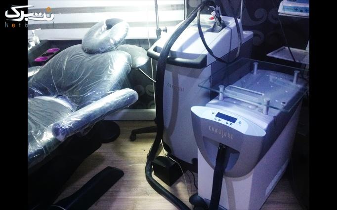 لیزر الکساندرایت موهای زائد در کلینیک بهجو