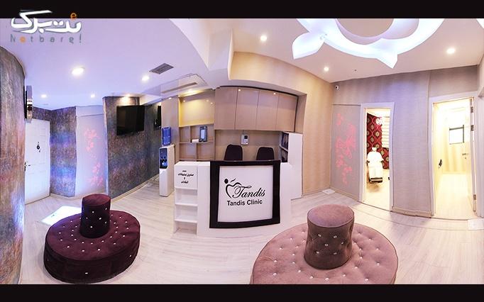 افتتاحیه سوپر لیزر الکساندرایت Elite+ 2015 در تندیس