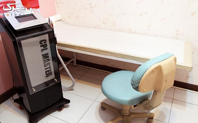 رفلکسولوژی پا در مرکز باریزان