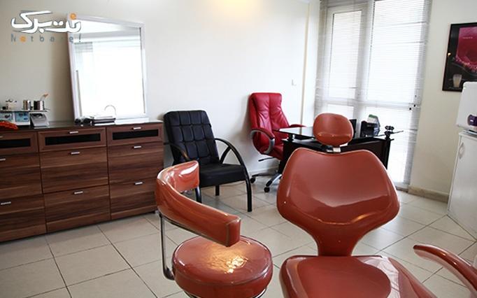 لیزر الکساندرایت 2014 در مطب خانم دکتر شیرزادی