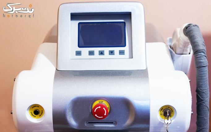 لیزر پیشرفته IPL در مرکز تخصصی پیوند