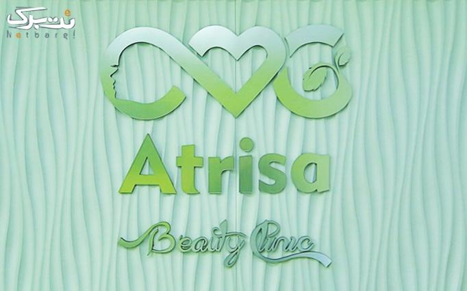 لیزر Diod موهای زائد در کلینیک آتریسا