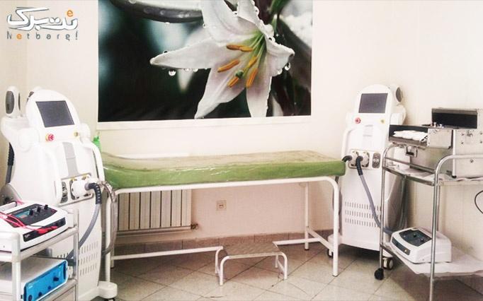 آبرسانی با هیدرودرم در کلینیک تندیس