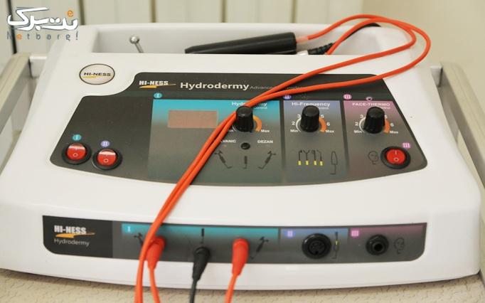 لیزر تلفیقی Elight و Alexandrite در کلینیک تندیس