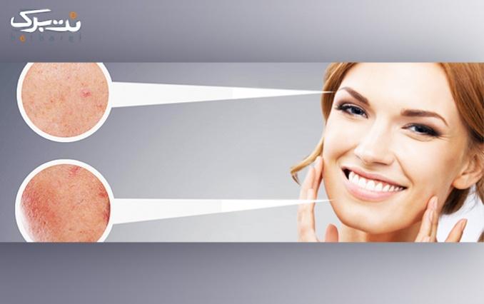 میکرودرم ابریژن پوست در کلینیک تندیس مطهری