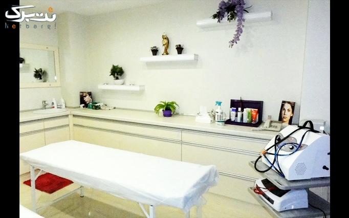 هیدرودرم در مطب آقای دکتر الوندی