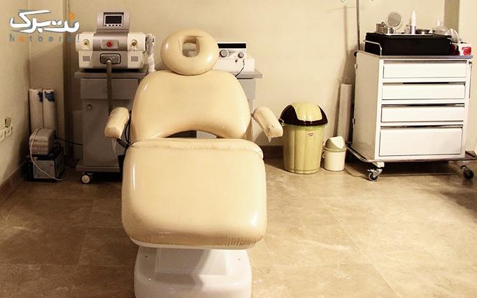 لیزر ipl موهای زائد در مطب دکتر خالقی