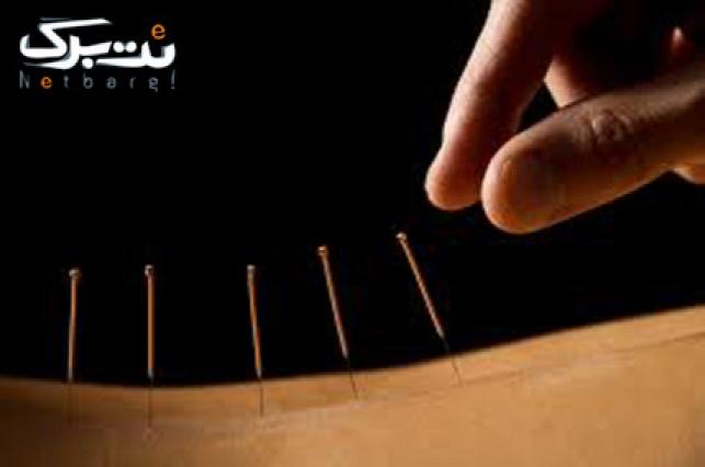 طب سوزنی در کلینیک مهر آریا