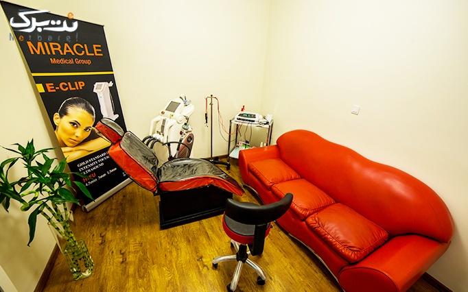 لیزر موهای زائد با دستگاه دایود در کلینیک میراکل
