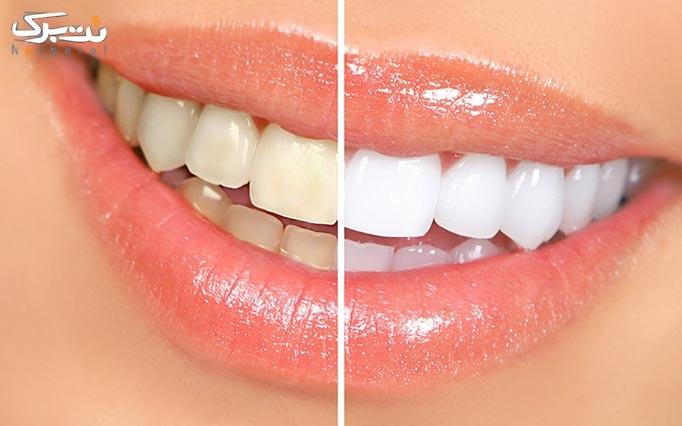 مسواک برقی اورال Oral-B بی با گارانتی