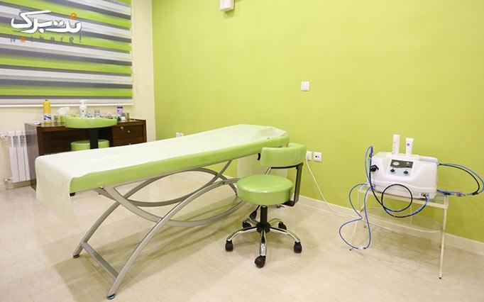 لیزر الکساندرایت کندلا در مطب دکتر اسماعیلی