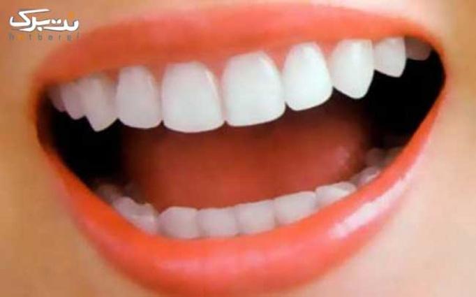 جرم گیری و  بلیچینگ در دندانپزشکی جنت آباد