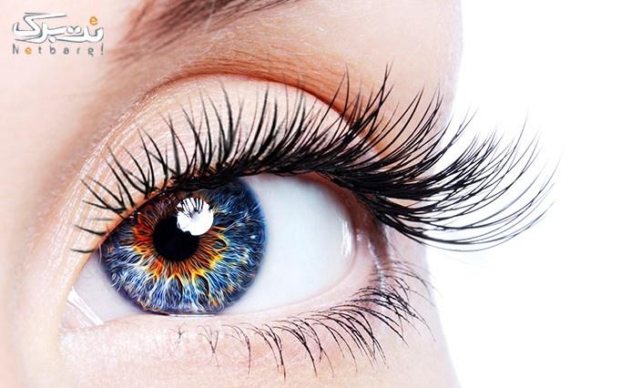 جشنواره رنگ های جدید لنزهای رنگی و طبی سلطانی
