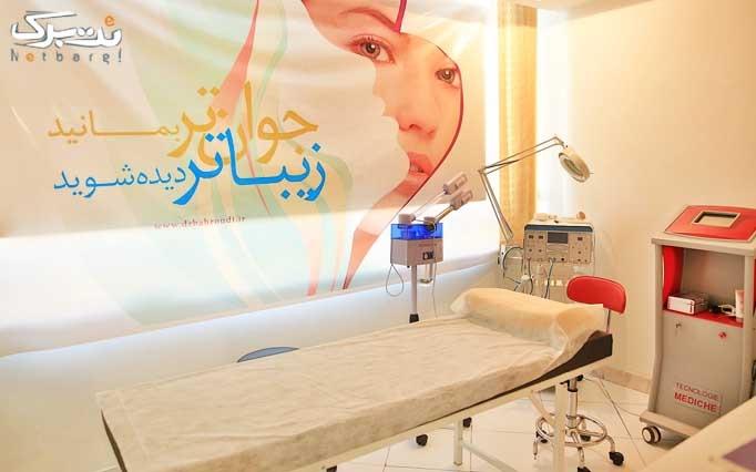 لیزر دایود در مطب خانم  دکتر بحرودی
