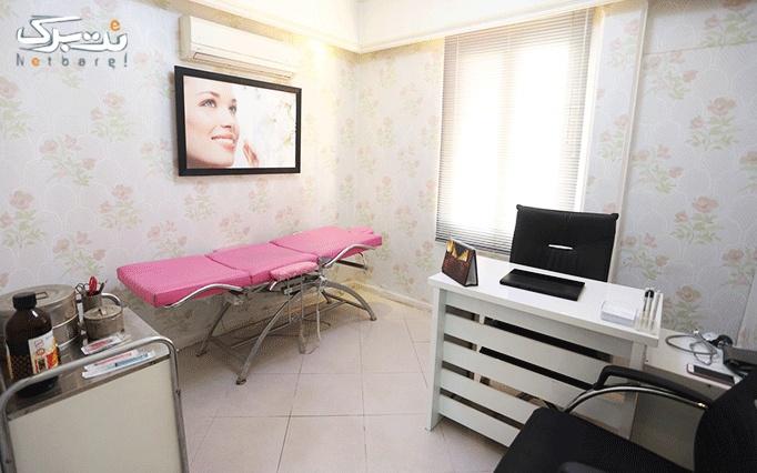 لیزر دایود در مطب دکتر اشترانی