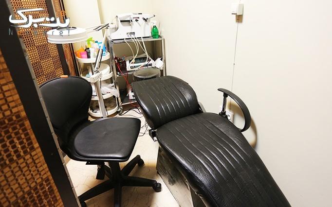 لیزر SHR در مطب دکتر علی محمدی