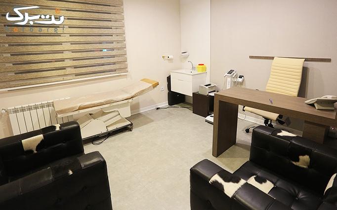 لیزر الکساندرایت در درمانگاه تخصصی گلبرگ