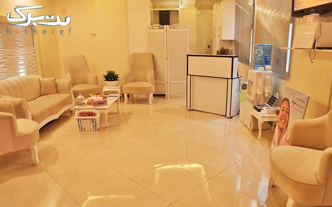 لیزر IPL در مطب دکتر موسوی