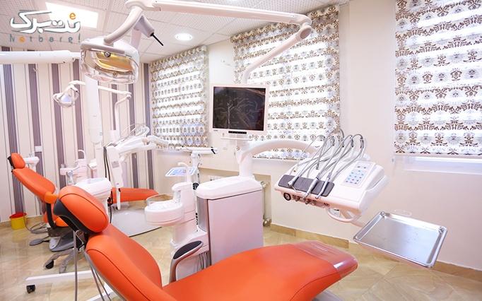 جرمگیری و بلیچینگ دندان در مطب دکتر امامی نسب