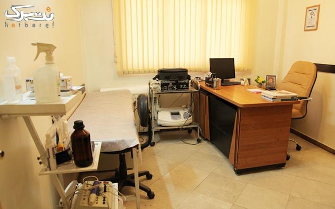 میکرودرم در مطب خانم دکتر حسینی