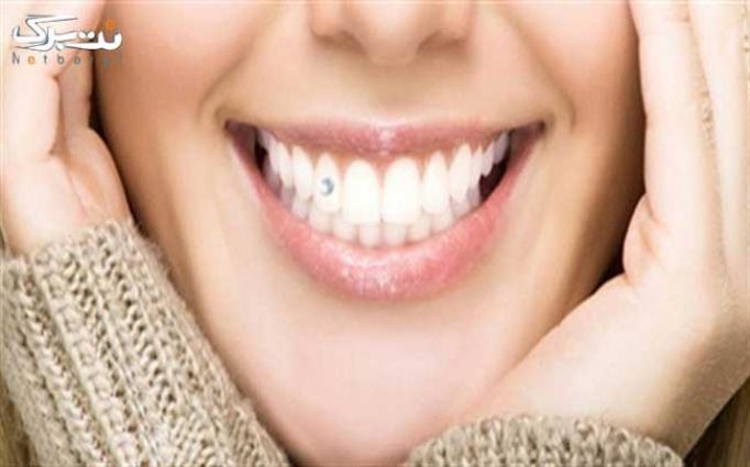 کاشت نگین دندان در مطب خانم دکتر فقیهی نیا