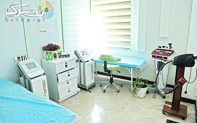 لیزر الکساندرایت apogee در مطب دکترصفایی