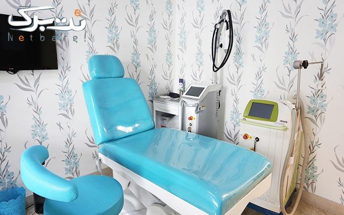 پکیج 1: لیزر الکساندرایت ویژه نواحی بدن در مطب دکتر تاجیک