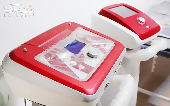 خدمات لاغری با دستگاه در مطب خانم دکتر سمیع زاده
