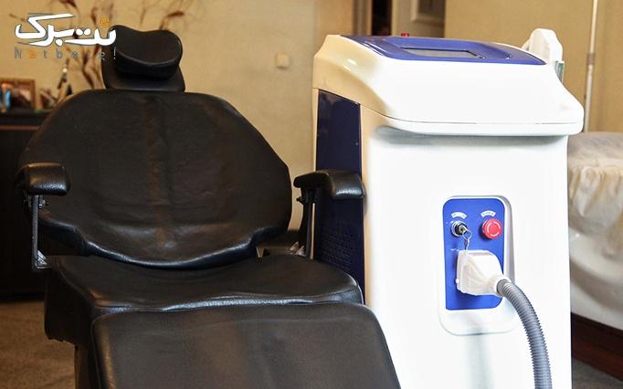 لیزر SHR در مطب دکتر رستمی