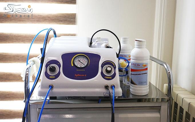 کرایولیپولیز در مطب دکتر پاینده