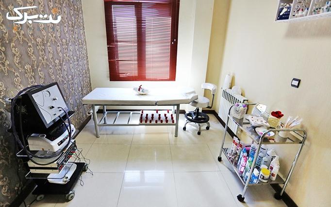 لیزر الکساندرایت کندلا در مطب دکتر داوودآبادی