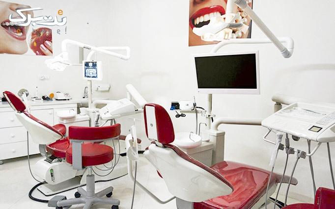 جرمگیری دندان در مطب دندانپزشکی دکتر اسدی