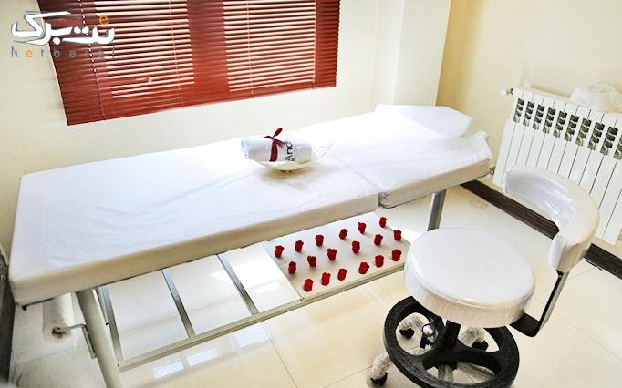 لاغری با LPG در مطب دکتر داوودآبادی