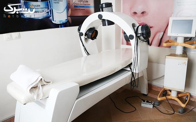 لیزر IPL موهای زائد در  مطب خانم دکتر حاجی لو