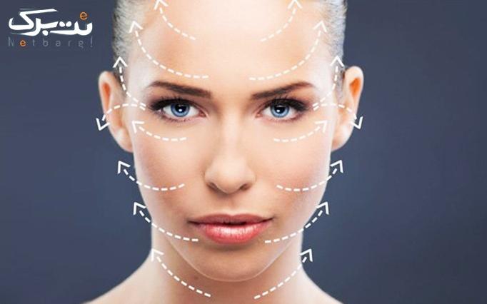 جوانسازی با نخ کلاژن در درمانگاه تخصصی پوست و مو اسپادانا