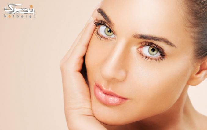 جوانسازی صورت با rf در درمانگاه تخصصی پوست و مو اسپادانا