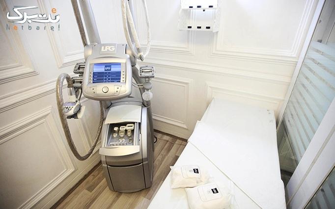 لاغری با LPG در مطب آقای دکتر شفایی