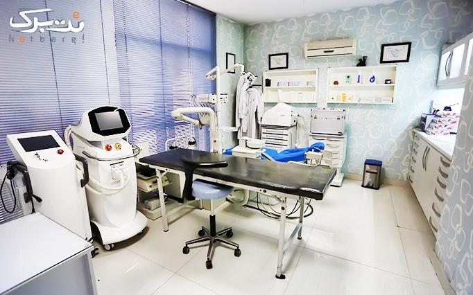 لیزر الکساندرایت کندلا در مطب  خانم دکتر شریعت خواه