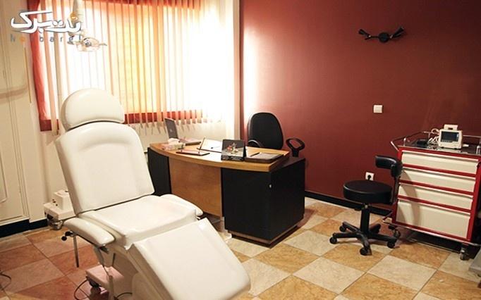 میکرودرم در مطب دکتر مهاجر شیخی