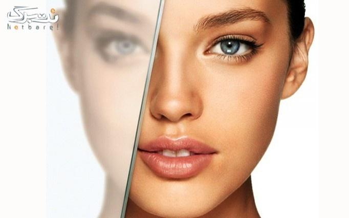 پاکسازی یا ویتامینه مو در آرایشگاه نفس