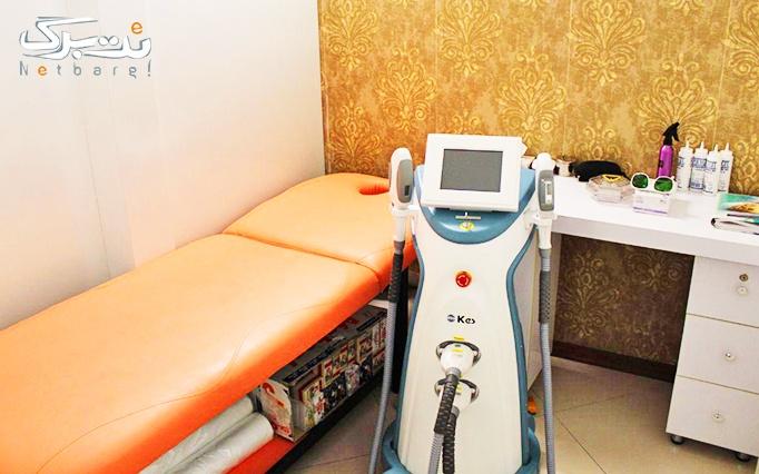 لیزر SHR در مطب خانم دکتر کیانی