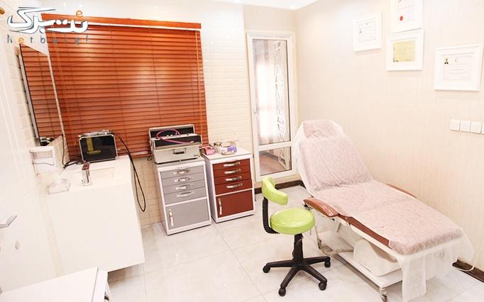 لیزر الکساندرایت در مطب دکتر علیخانی