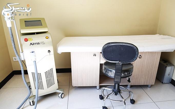 لیزر الکساندرایت درمطب آقای دکتر صدیقی