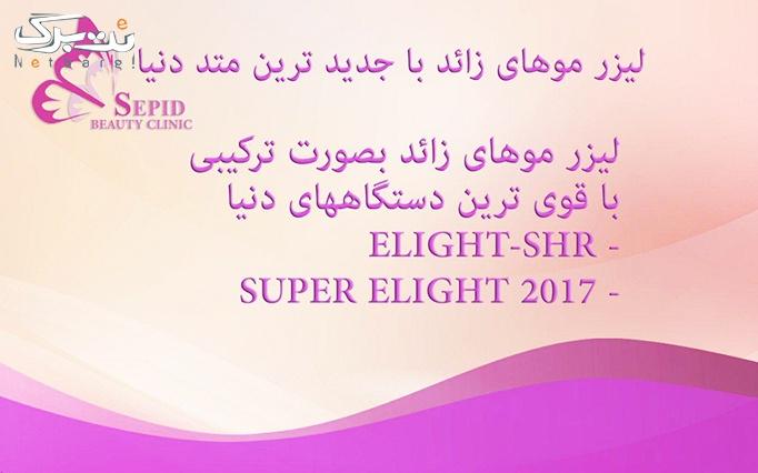 لیزر Elight _SHR در مرکز پزشکی زیبایی سپید