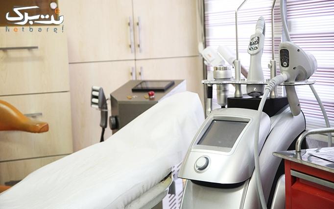 آراف و کویتیشن در مطب خانم دکتر گلناز مهرورز
