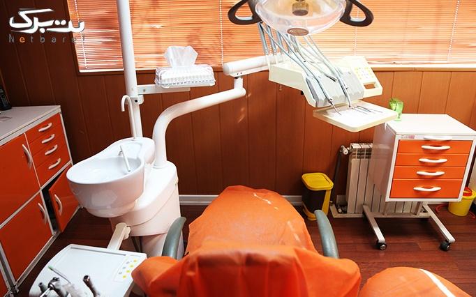جرمگیری و کاشت نگین در مطب خانم دکتر فاطمی