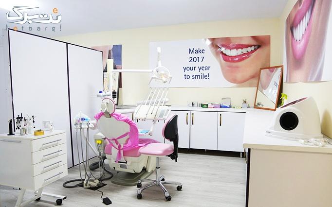 بلیچینگ و جرمگیری دندان در مطب آقای ابوالحسنی