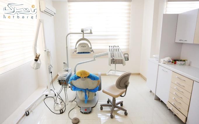 جرمگیری دندان در مطب خانم دکتر عرب