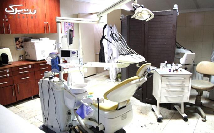 کاشت نگین دندان در دندانپزشکی گلبرگ