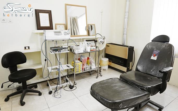 خالبرداری در مطب پزشک